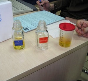 Urine A and B Sample Bottles